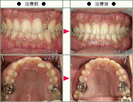 歯のデコボコ矯正症例(KK様 25歳 男性)
