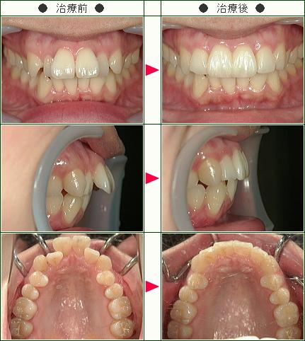 出っ歯矯正症例(K.K様 31歳 女性)