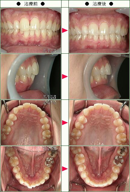 歯のデコボコ矯正症例(K・K様 32歳 男性)