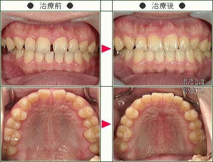 前歯のすきっ歯矯正症例(K.K様 35歳 男性)