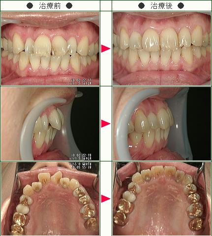 歯のデコボコ矯正症例(K.K様 41歳 女性)