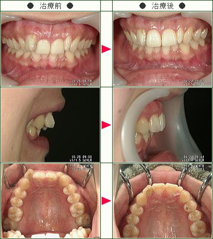 歯のデコボコ矯正症例(K.M.様 24歳 女性)