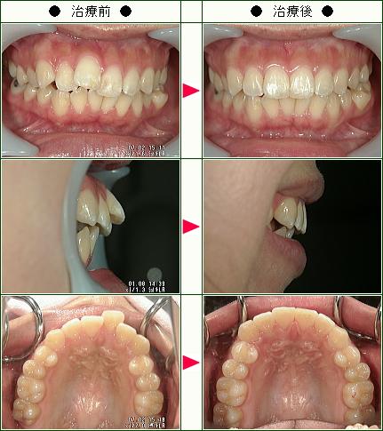 歯のデコボコ矯正症例(K.N様 23歳 女性)
