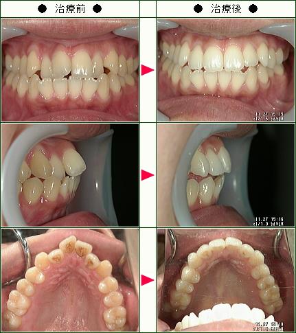 歯のデコボコ矯正症例(K.N様 28歳 女性)