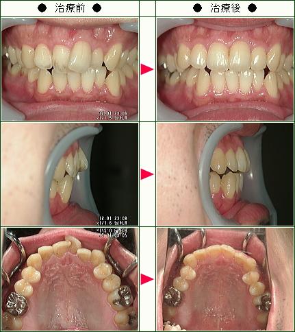 歯のデコボコ矯正症例(K.N様 29歳 男性)