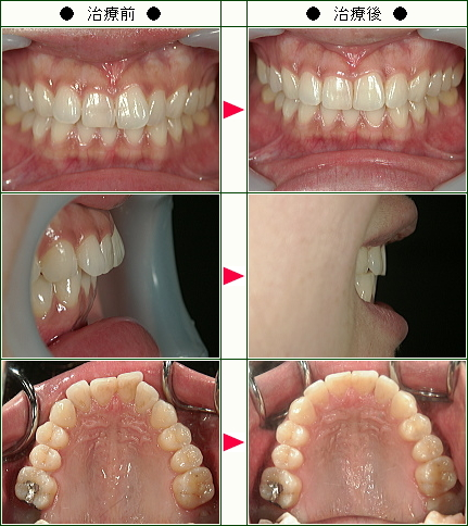 出っ歯矯正症例(K.O様 26歳)