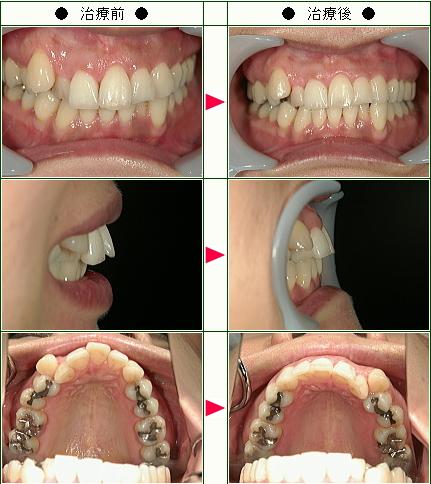歯のデコボコ矯正症例(小橋様 40歳 女性)