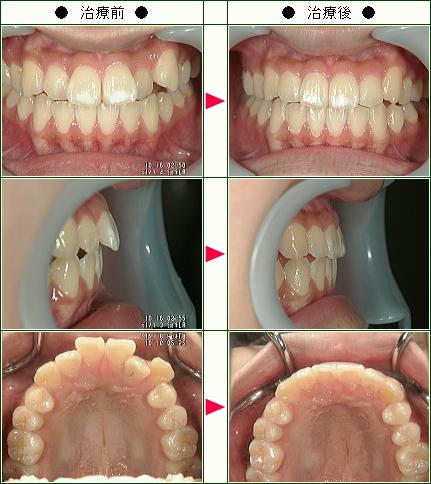 歯のデコボコ矯正症例(小堀様 18歳 女性)