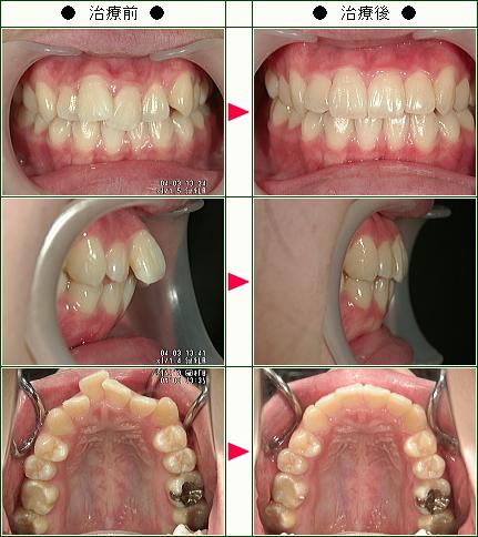 出っ歯矯正症例(小出様 18歳 女性)