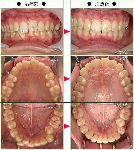 歯のデコボコ矯正症例(K.R様 24歳 女性)