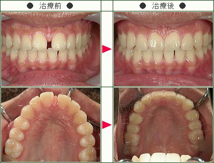前歯のすきっ歯矯正症例(K.S様 18歳 女性)