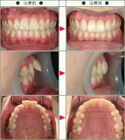 出っ歯矯正症例(K.S様 20歳 女性)