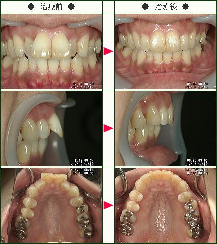 出っ歯矯正症例(K・S様 42歳 女性)