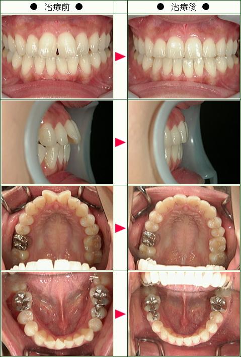 歯のデコボコ矯正症例(K.T様 25歳 女性)