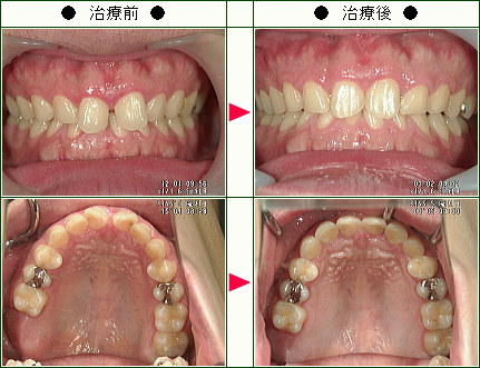 前歯のすきっ歯矯正症例(K.T様 25歳 男性)