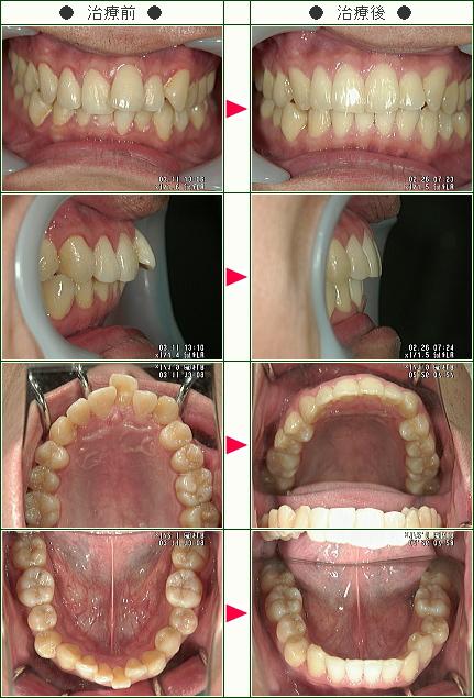歯のデコボコ矯正症例(K.U様 30歳 男性)