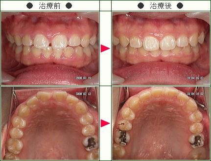 前歯のすきっ歯矯正症例(久美様 27歳 女性)