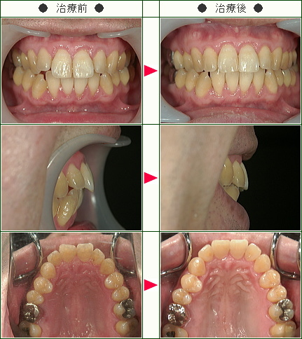 出っ歯矯正症例(KY様 44歳 男性)