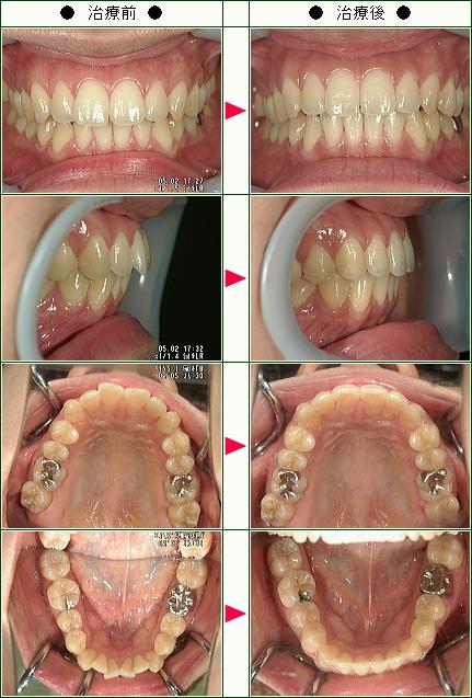 歯のデコボコ矯正症例(L.M様 28歳 女性)