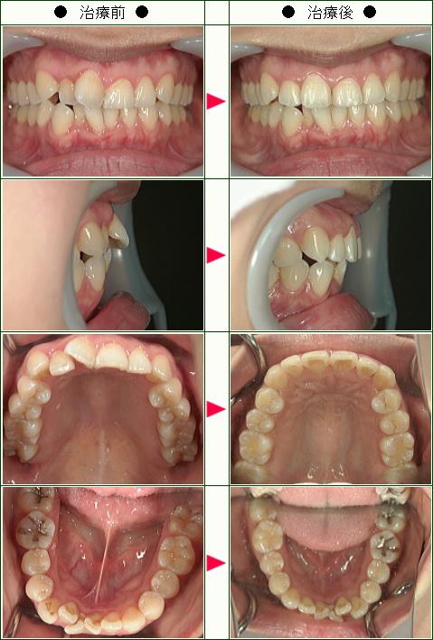 歯のデコボコ矯正症例(M様 31歳 女性)