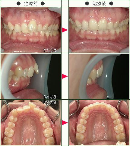 歯のデコボコ矯正症例(M様 34歳 女性)