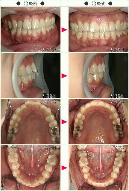 歯のデコボコ矯正症例(M様 38歳 女性)