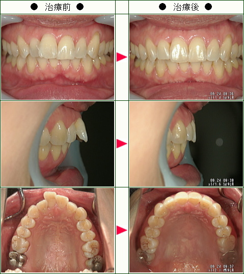 出っ歯矯正症例(M様 52歳 女性)