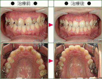歯のデコボコ矯正症例(M・A様 29歳 女性)