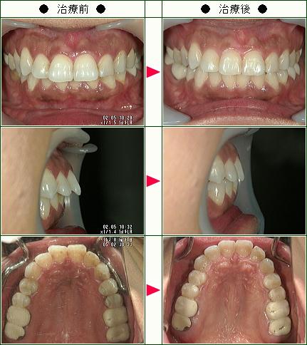 出っ歯矯正症例(M.A様 45歳 女性)