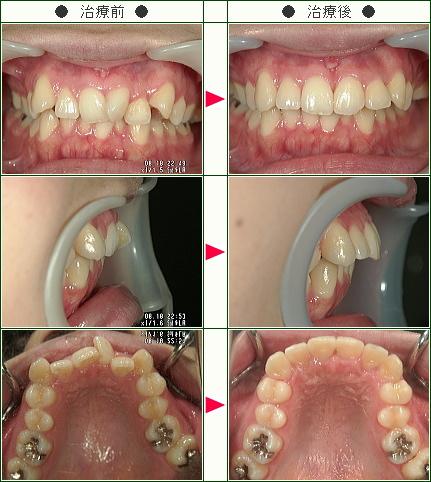 歯のデコボコ矯正症例(まどか様 22歳 女性)