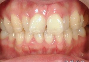 前歯のデコボコを簡単に治す!症例の徹底解説!!