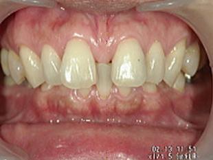前歯のすきっ歯を簡単に治す!!