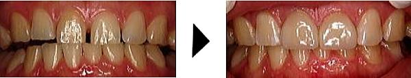 ラミネートベニアですきっ歯を治す
