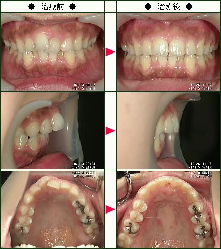 歯のデコボコ矯正症例(前田様 27歳 女性)