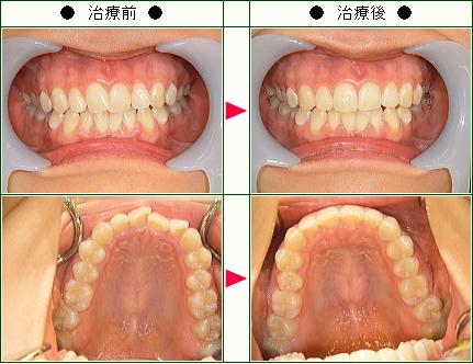 歯のデコボコ矯正症例(麻帆様 22歳 女性)