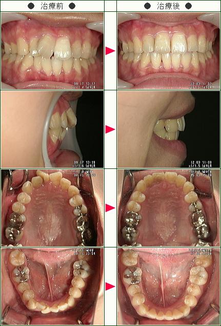 歯のデコボコ矯正症例(真希子様 26歳 女性)