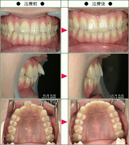 歯のデコボコ矯正症例(Mana様 32歳 女性)