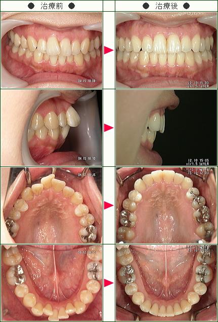 歯のデコボコ矯正症例(Manzana様 31歳 女性)