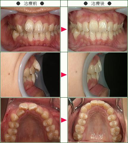 歯のデコボコ矯正症例(増田様 26歳 女性)