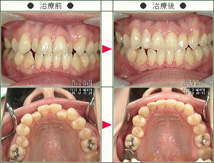 歯のデコボコ矯正症例(松井様 35歳 女性)