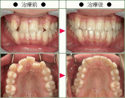 歯のデコボコ矯正症例(松村様 15歳 女性)