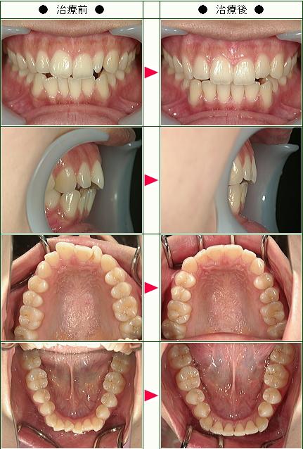 歯のデコボコ矯正症例(Merci0607様 28歳 女性)