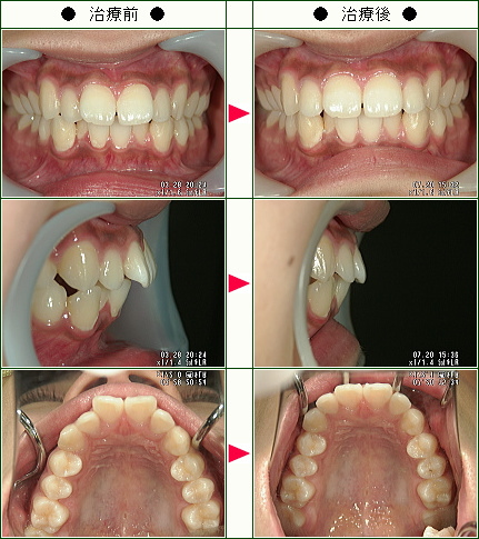 出っ歯矯正症例(M.H様 19歳 女性)