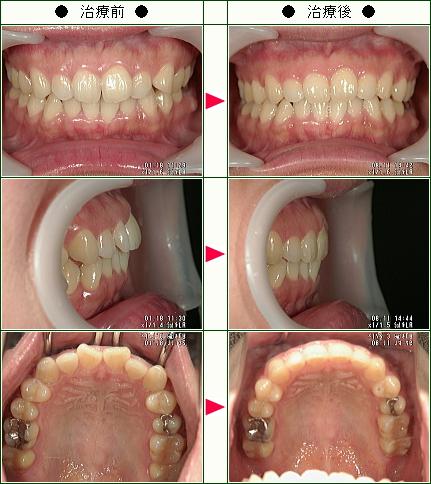 歯のデコボコ矯正症例(M.H.様 38歳 女性)