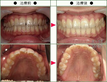 前歯のすきっ歯矯正症例(M.I.様 26歳 女性)