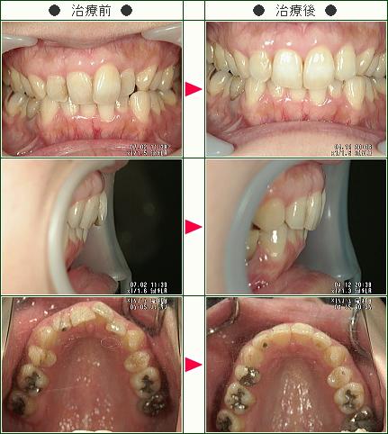 歯のデコボコ矯正症例(M・I様 38歳 女性)