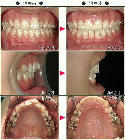 歯のデコボコ矯正症例(道家様 26歳 女性)