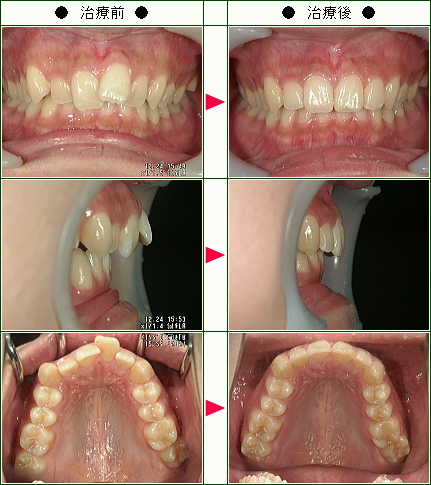 歯のデコボコ矯正症例(美穂様 20歳 女性)