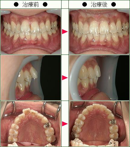 歯のデコボコ矯正症例(三笠様 34歳 女性)