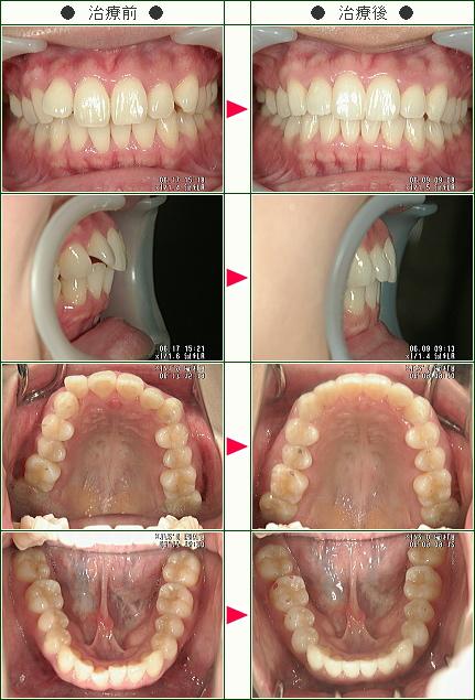 歯のデコボコ矯正症例(みのり様 27歳 女性)